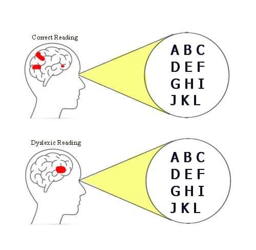 dyslexic-brain-reading